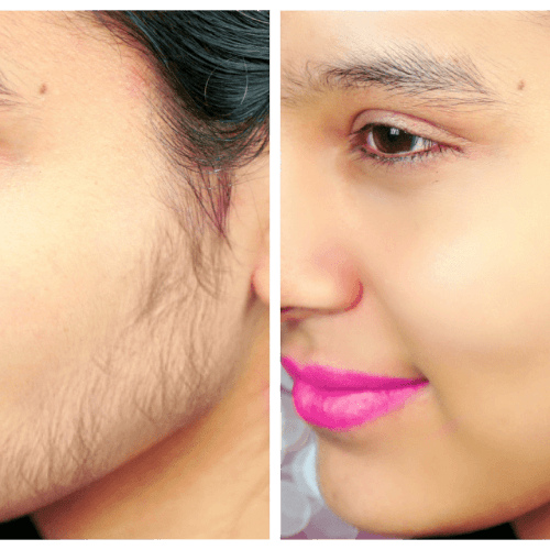 Permanent Unwanted Hair Reduction